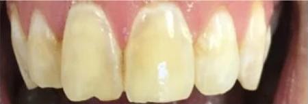 Yellowish Teeth