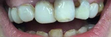 Shabby Teeth