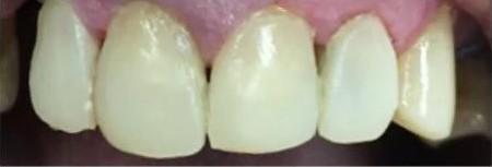 Uncleaned Teeths