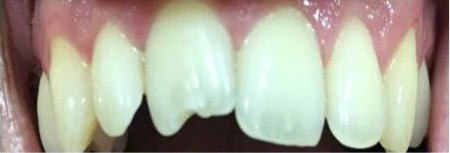Shapes Of Teeth