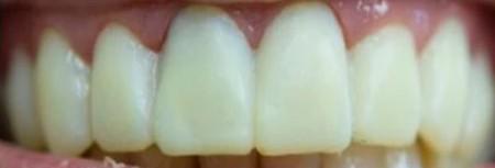 Light Yellow Teeth