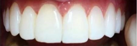 White Hygiene Teeth