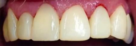 Weak Gums & Teeth